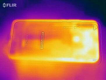 Thermal image - Back